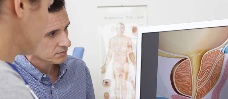 Cauzele hiperplaziei benigne de prostată