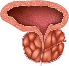 Prostata mărită